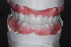jason backe porcelain jpg Dental Porcelain Veneers: Hollywood Smile Part 2