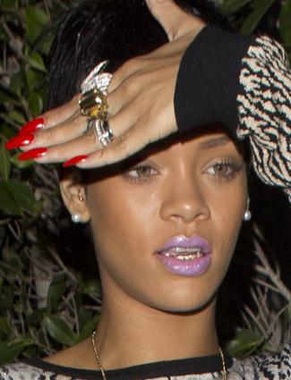 ss rihannagrill  0 Lady Gaga Shaves Her Head; Rihanna Gets A Grill