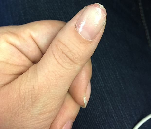 The Dangers of the Gel Manicure: A Cautionary Tale | StyleCaster