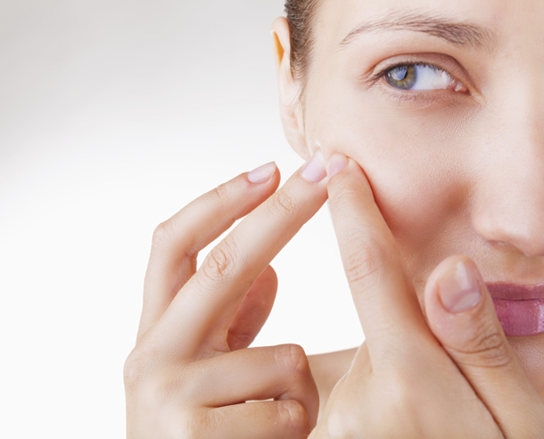 acne solutions